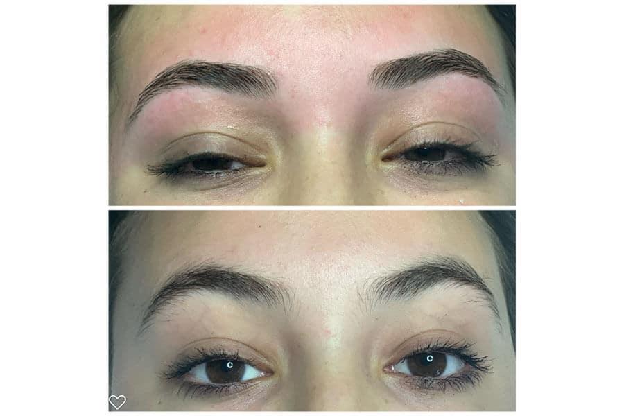 Eyelash Eyebrow Treatment